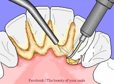 """تنظيف الاسنان من الجير وازالته """"9"""""""