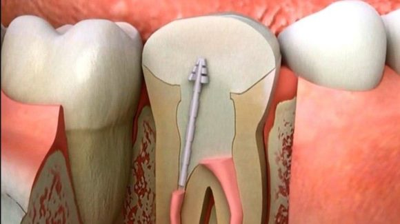 علاج جذور الاسنان