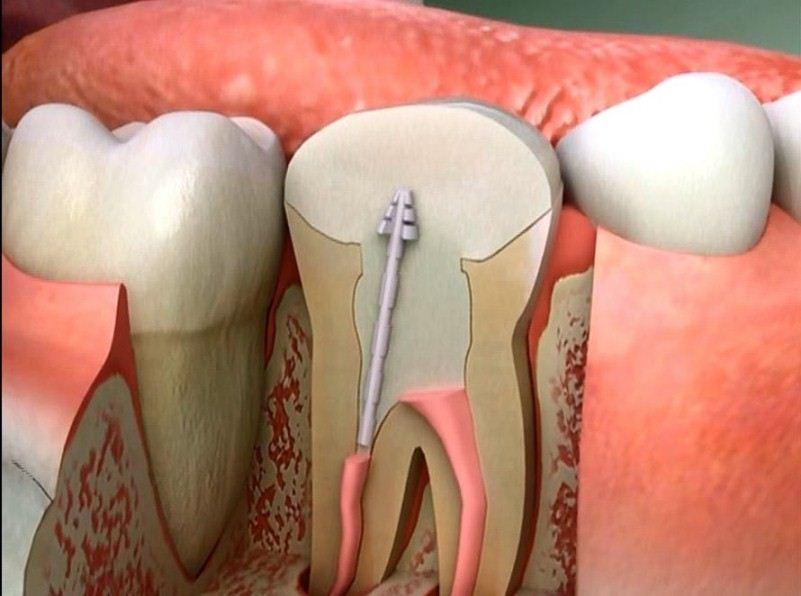 "علاج جذور الاسنان 2019 ""1"""