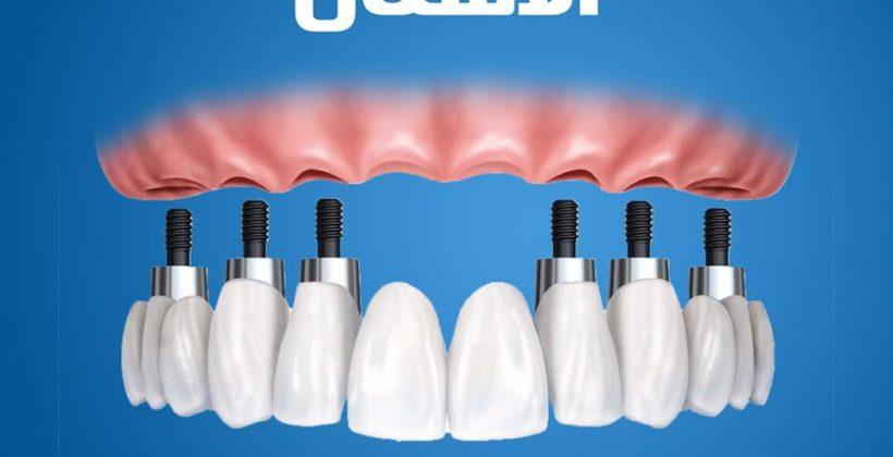 كيفية تحديد اسعار زراعة الاسنان