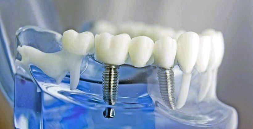 احدث ابتكارات زراعة الأسنان واسعارها